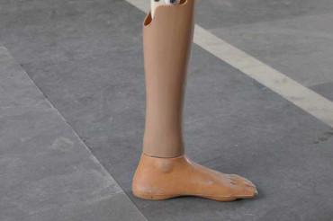 Jaipur Foot / Jaipur Knee / Jaipur Limb (finalist)